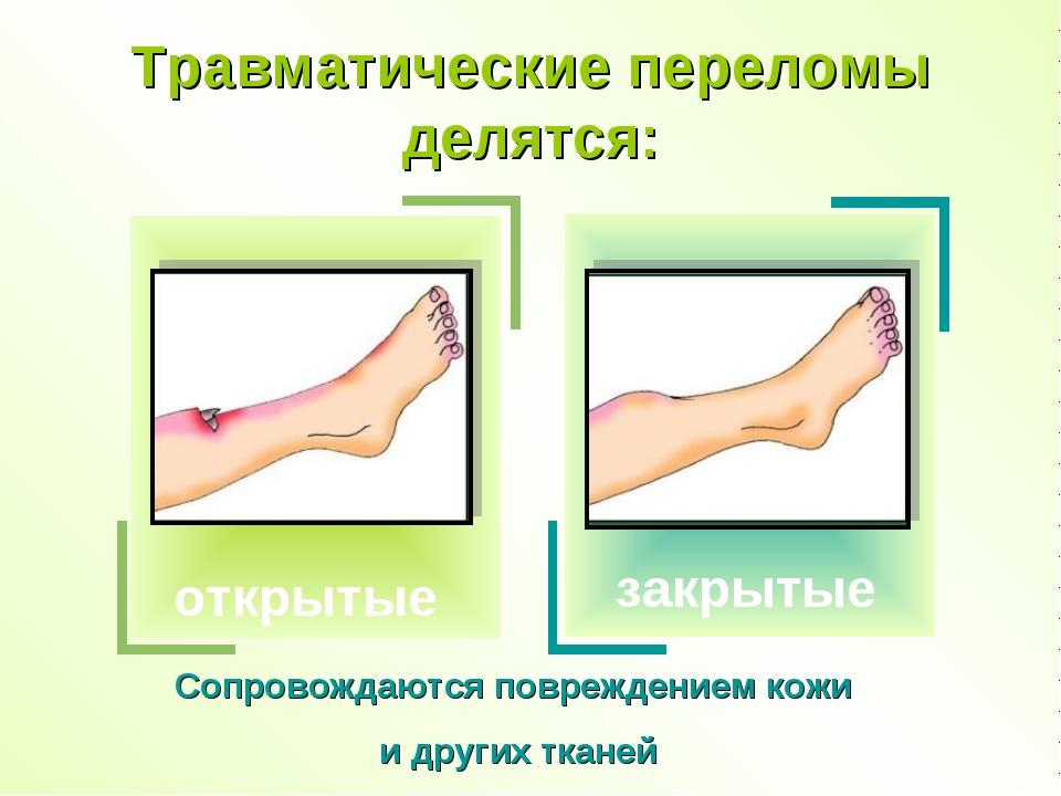 Травматические переломы делятся: закрытые Сопровождаются повреждением кожи и...