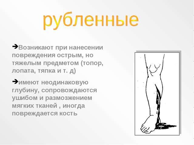 Возникают при нанесении повреждения острым, но тяжелым предметом (топор, лопа...