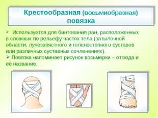 Используется для бинтования ран, расположенных всложных порельефу частях т