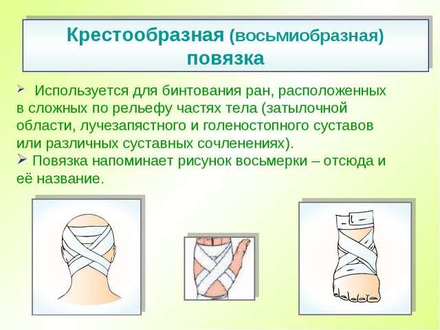 Используется для бинтования ран, расположенных всложных порельефу частях т...
