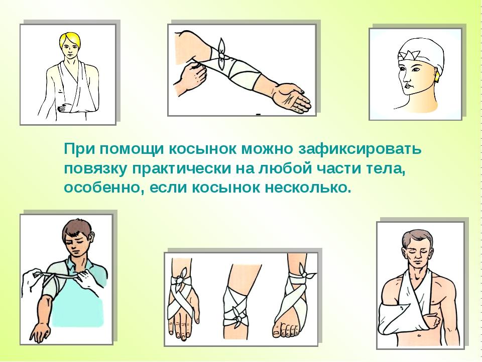 При помощи косынок можно зафиксировать повязку практически налюбой части тел...