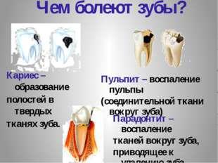 Чем болеют зубы? Пульпит – воспаление пульпы (соединительной ткани вокруг зуб