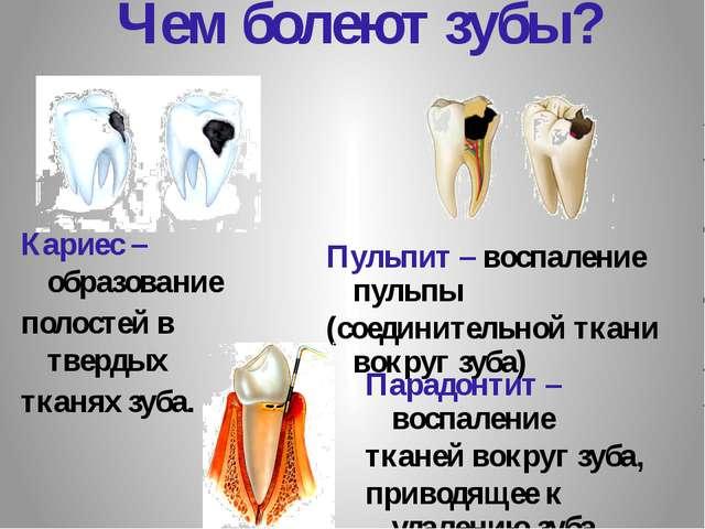 Чем болеют зубы? Пульпит – воспаление пульпы (соединительной ткани вокруг зуб...