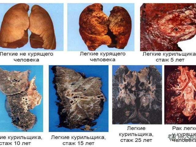 Болят легкие от курения симптомы