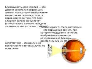 Близорукость, или Миопия — это дефект (аномалия рефракции) зрения, при которо