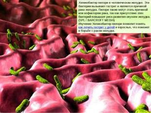 Хеликобактер пилори в человеческом желудке. Эти бактерии вызывают гастрит и я