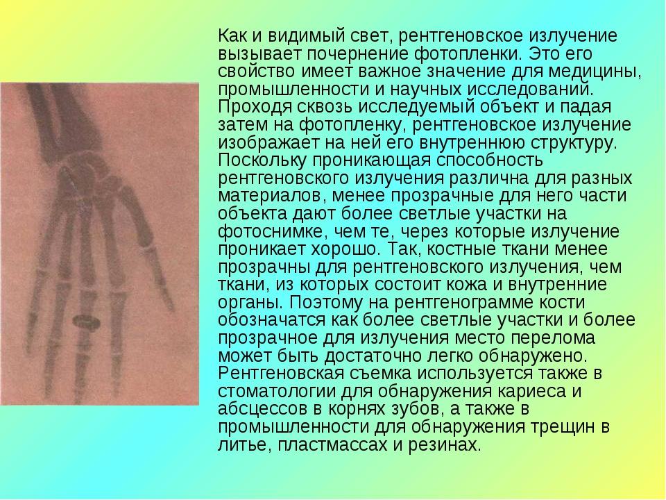 Как и видимый свет, рентгеновское излучение вызывает почернение фотопленки....