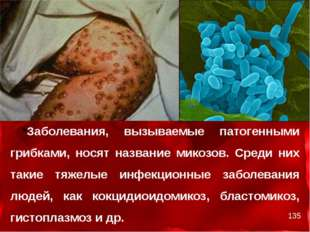 Заболевания, вызываемые патогенными грибками, носят название микозов. Среди