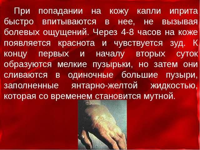 При попадании на кожу капли иприта быстро впитываются в нее, не вызывая болев...