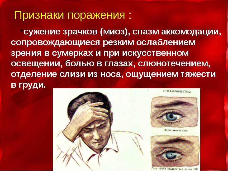 Признаки поражения : сужение зрачков (миоз), спазм аккомодации, сопровождающи...