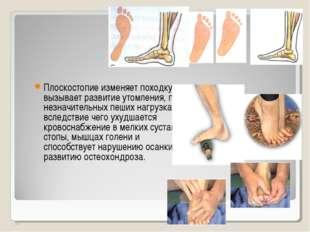 Плоскостопие изменяет походку, вызывает развитие утомления, при незначительны