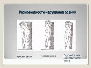 Разновидности нарушения осанки * Круглая спина Плоская спина Седлообразная (