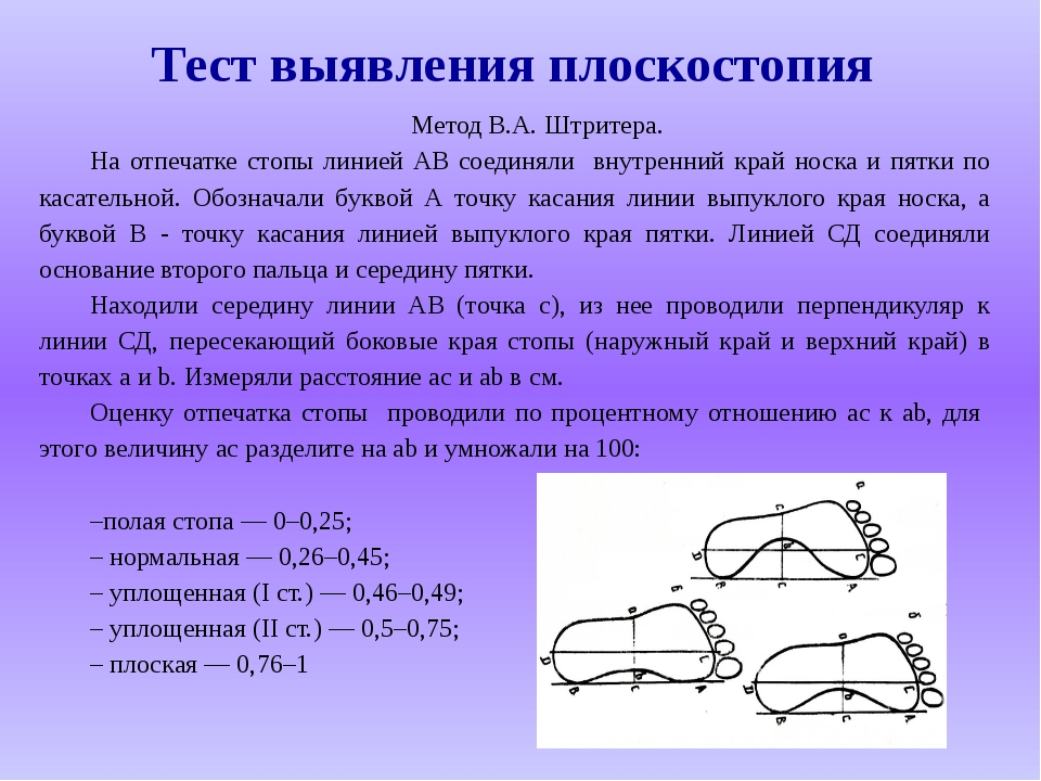Тест выявления плоскостопия Метод В.А. Штритера. На отпечатке стопы линией АВ...