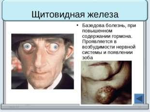 Щитовидная железа Базедова болезнь, при повышенном содержании гормона. Проявл