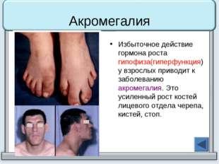 Акромегалия Избыточное действие гормона роста гипофиза(гиперфункция) у взросл