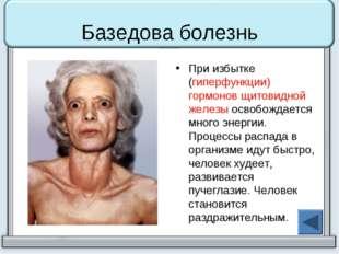 Базедова болезнь При избытке (гиперфункции) гормонов щитовидной железы освобо
