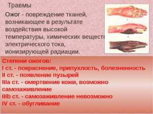 Травмы Ожог - повреждение тканей, возникающее в результате воздействия высоко