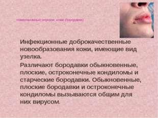Немеланомные опухоли кожи (бородавки) Инфекционные доброкачественные новообра