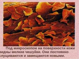 Под микроскопом на поверхности кожи видны мелкие чешуйки. Они постоянно слу