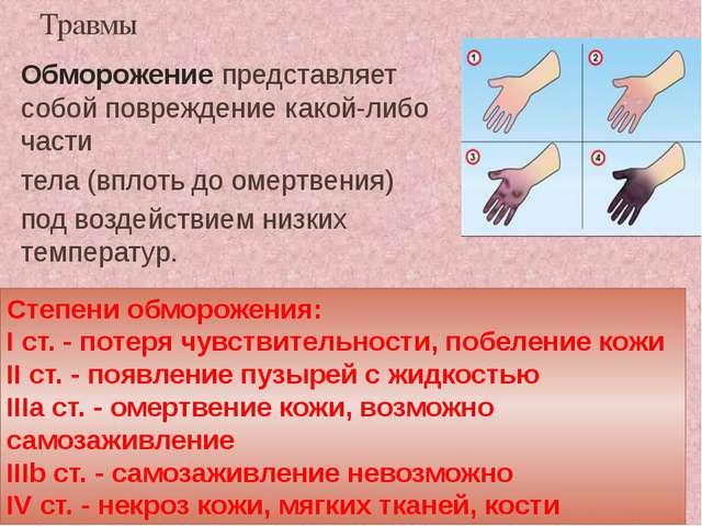 Травмы Обморожение представляет собой повреждение какой-либо части тела (впло...