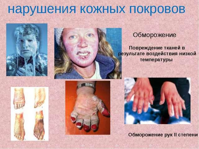 Обморожение Обморожение рук II степени Повреждение тканей в результате воздей...