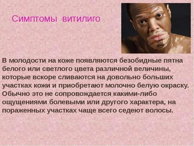 Симптомы витилиго В молодости на коже появляются безобидные пятна белого или...