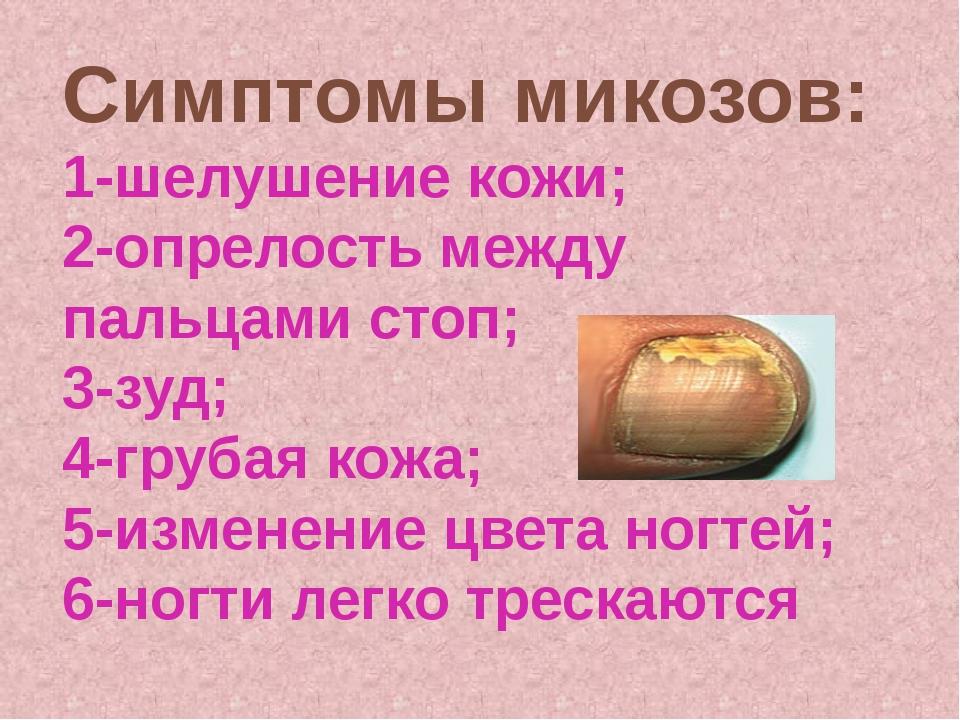 Симптомы микозов: 1-шелушение кожи; 2-опрелость между пальцами стоп; 3-зуд; 4...