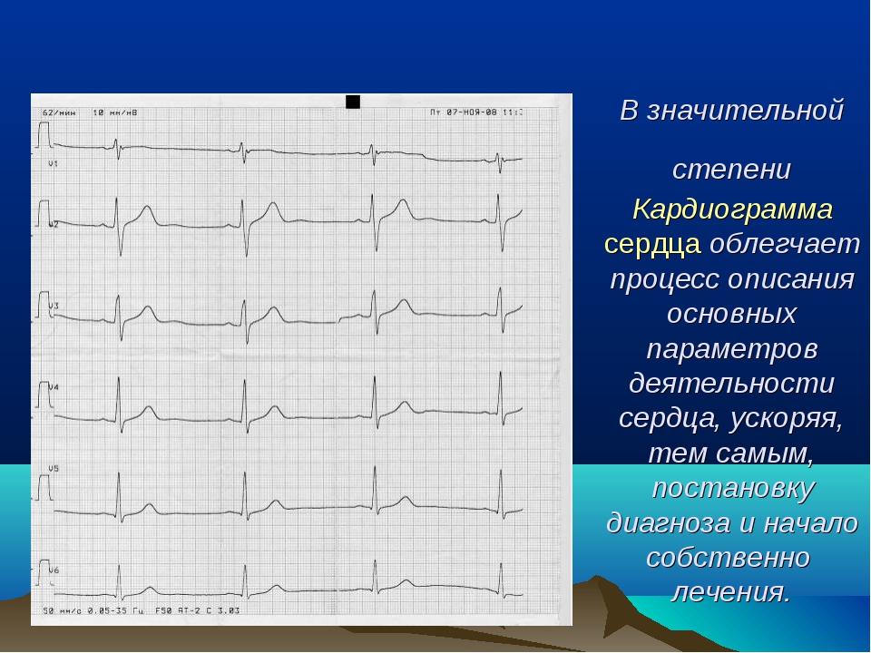 В значительной степени Кардиограмма сердца облегчает процесс описания основны...
