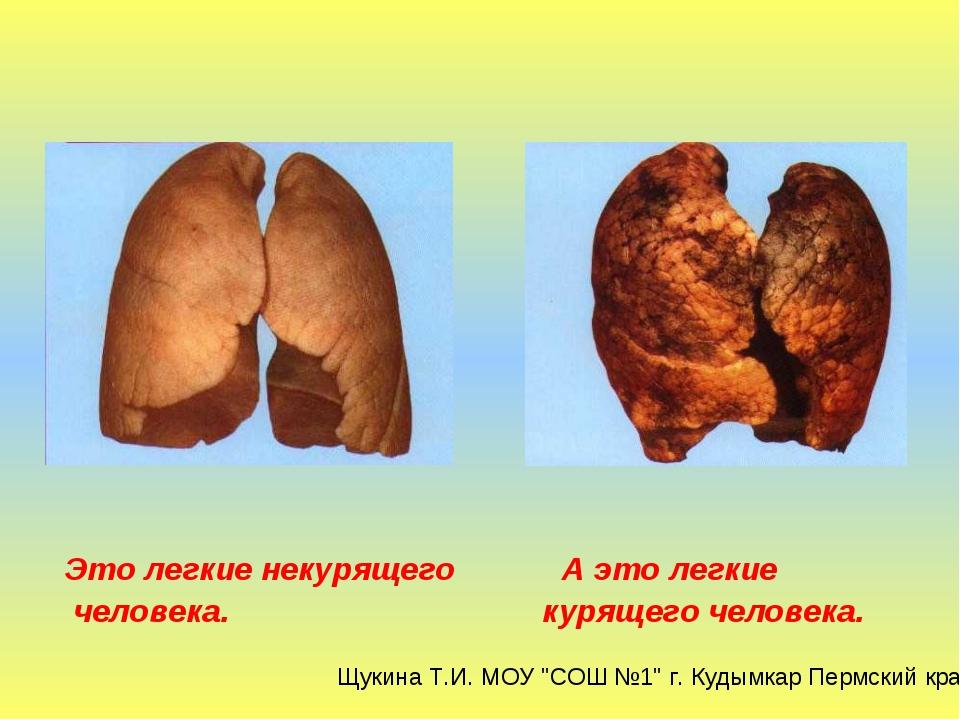 Это легкие некурящего А это легкие человека. курящего человека. Щукина Т.И....