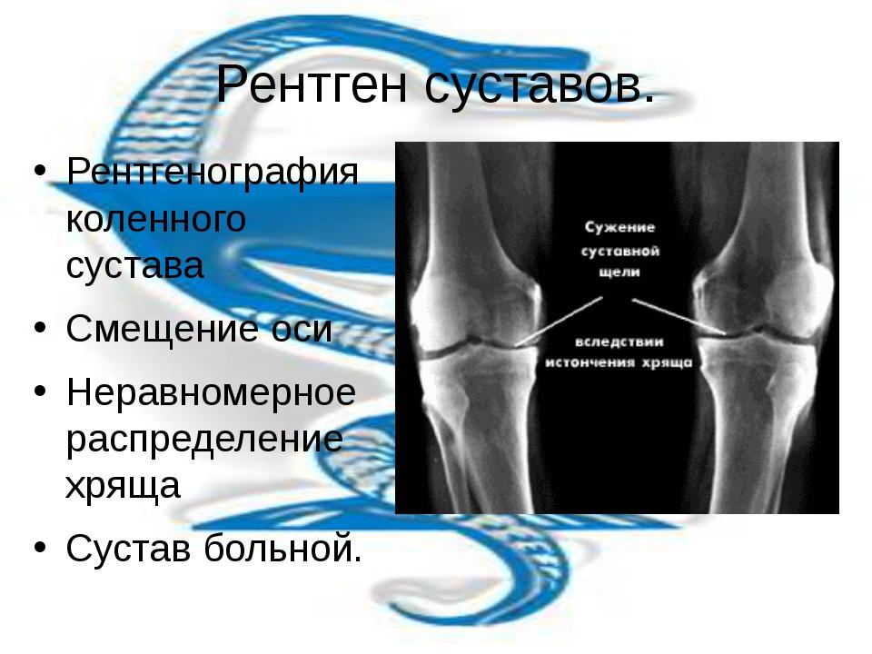 Рентген суставов пройти