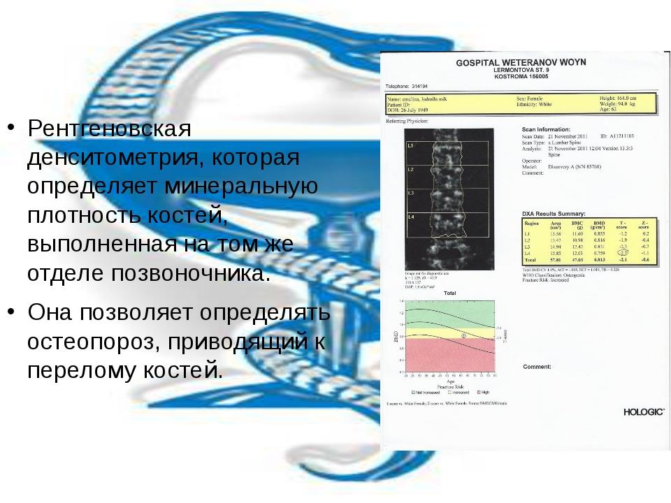 Рентгеновская денситометрия, которая определяет минеральную плотность костей...