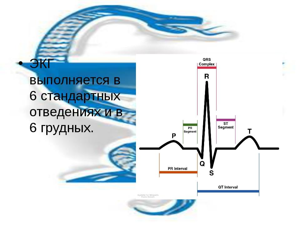 ЭКГ выполняется в 6 стандартных отведениях и в 6 грудных.