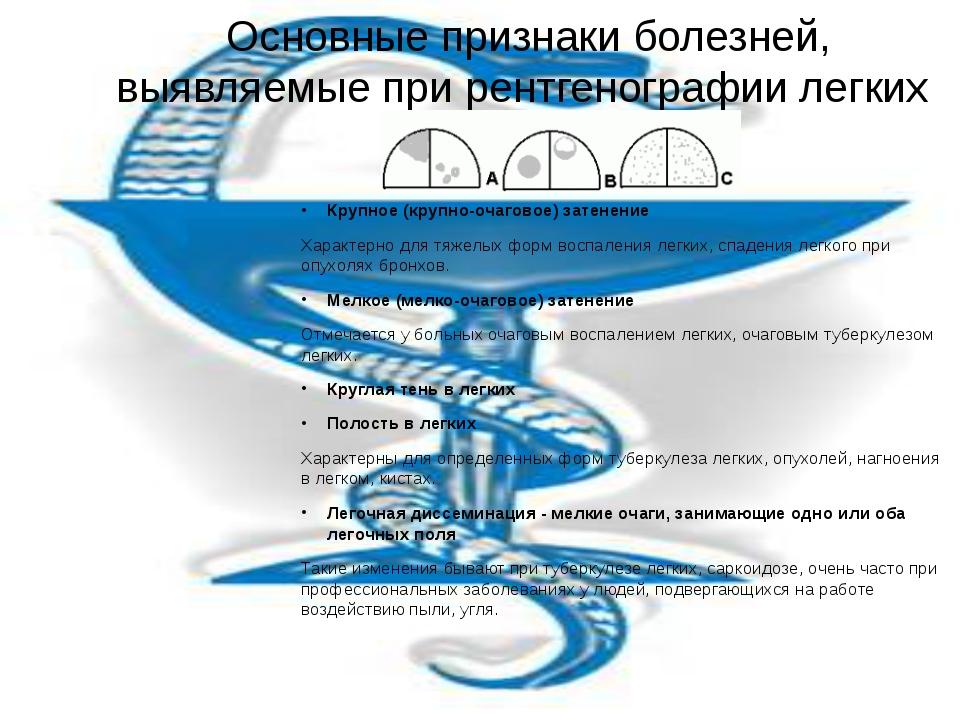 Основные признаки болезней, выявляемые при рентгенографии легких Крупное (кру...