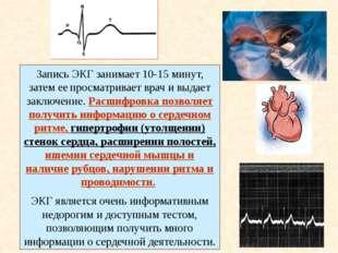 1.Как действуют на сердце парасимпатическая и симпатическая нервные системы?