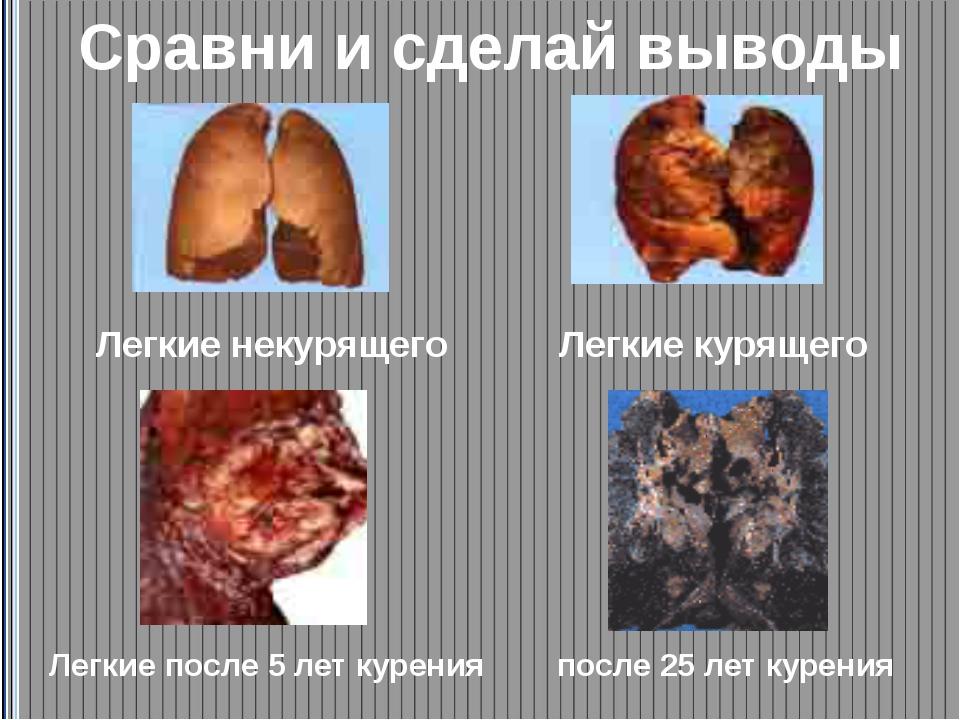 Сравни и сделай выводы Легкие некурящего Легкие курящего Легкие после 5 лет...