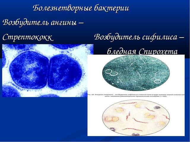 Болезнетворные бактерии Возбудитель ангины – Стрептококк Возбудитель сифилиса...