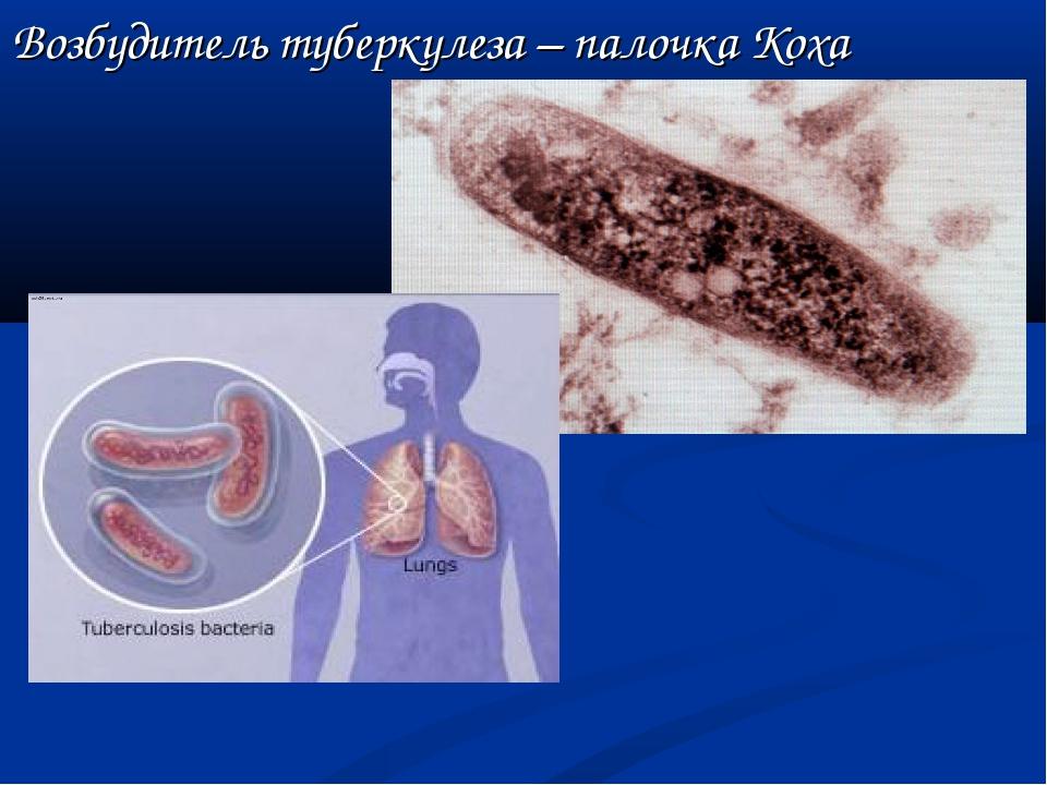 Возбудитель туберкулеза – палочка Коха