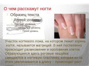 О чем расскажут ногти Участок ногтевого ложа, на котором лежит корень ногтя,