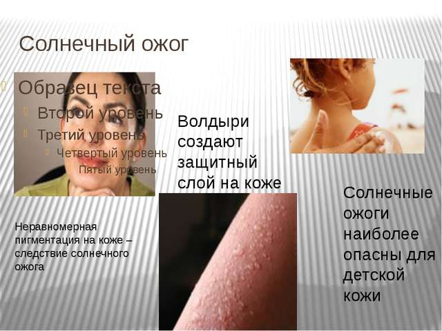 Солнечный ожог Неравномерная пигментация на коже – следствие солнечного ожога...