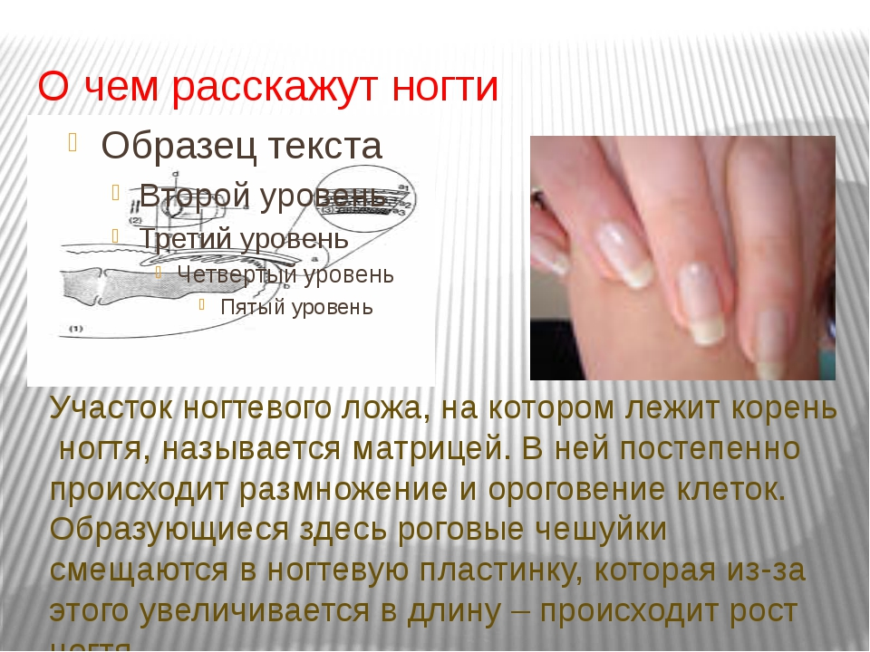 О чем расскажут ногти Участок ногтевого ложа, на котором лежит корень ногтя,...