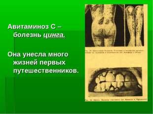 Авитаминоз С – болезнь цинга. Она унесла много жизней первых путешественников.
