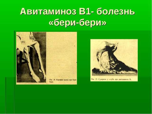 Авитаминоз В1- болезнь «бери-бери»