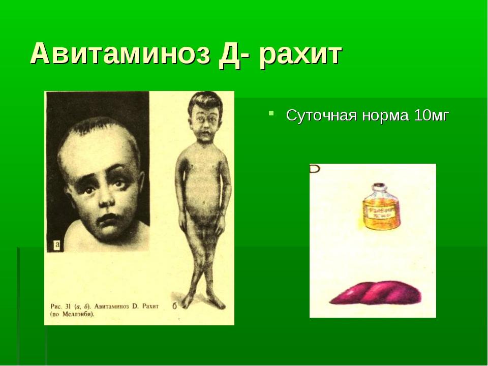 Авитаминоз Д- рахит Суточная норма 10мг
