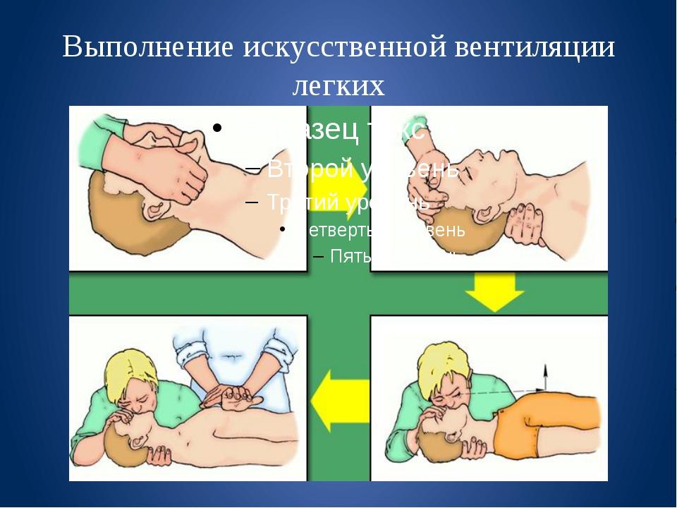 Выполнение искусственной вентиляции легких