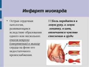 Инфаркт миокарда Острая сердечная патология, развивающаяся вследствие образо