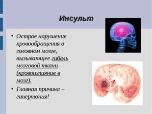 Инсульт Острое нарушение кровообращения в головном мозге, вызывающее гибель