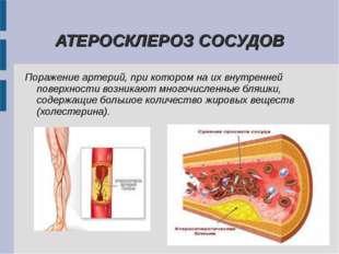 АТЕРОСКЛЕРОЗ СОСУДОВ Поражение артерий, при котором на их внутренней поверхн