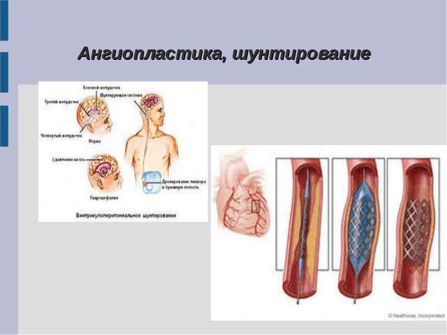 Ангиопластика, шунтирование