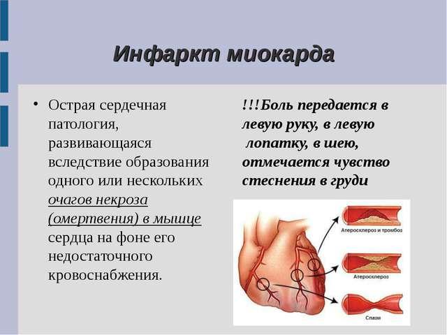 Инфаркт миокарда Острая сердечная патология, развивающаяся вследствие образо...