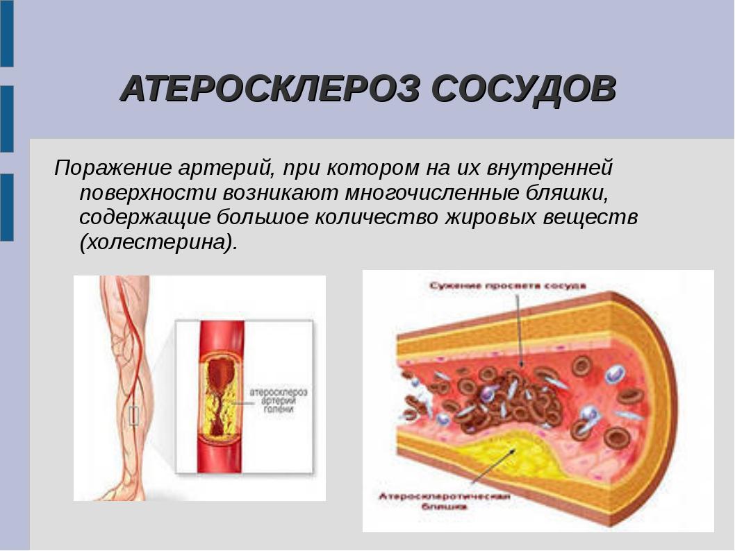 АТЕРОСКЛЕРОЗ СОСУДОВ Поражение артерий, при котором на их внутренней поверхн...